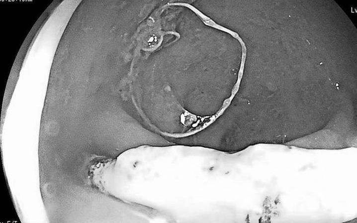 Vòng tránh thai ''đi lạc'', đâm thủng trực tràng người phụ nữ