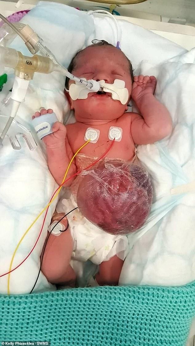 """Háo hức chờ siêu âm ở tuần thứ 12 để được nhìn thấy con, bà mẹ """"chết đứng"""" khi nghe bác sĩ khuyên nên chấm dứt thai kỳ  - Ảnh 2."""