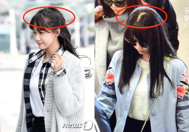 Sấy tóc như Yoona bảo sao tóc rụng, lộ cả mảng da đầu: Các nàng cũng nên cẩn thận đừng mắc sai lầm - Ảnh 1.