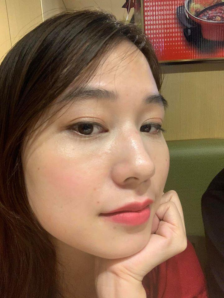Dùng thử tuýp retinol A313 trong 1 tháng, cô nàng giảm hẳn mụn, lỗ chân lông nhỏ xíu: Ai chê chứ mình thấy rất nên dùng - Ảnh 7.