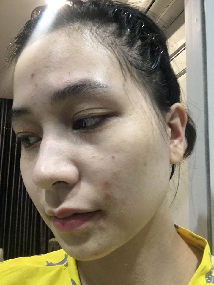 Dùng thử tuýp retinol A313 trong 1 tháng, cô nàng giảm hẳn mụn, lỗ chân lông nhỏ xíu: Ai chê chứ mình thấy rất nên dùng - Ảnh 2.
