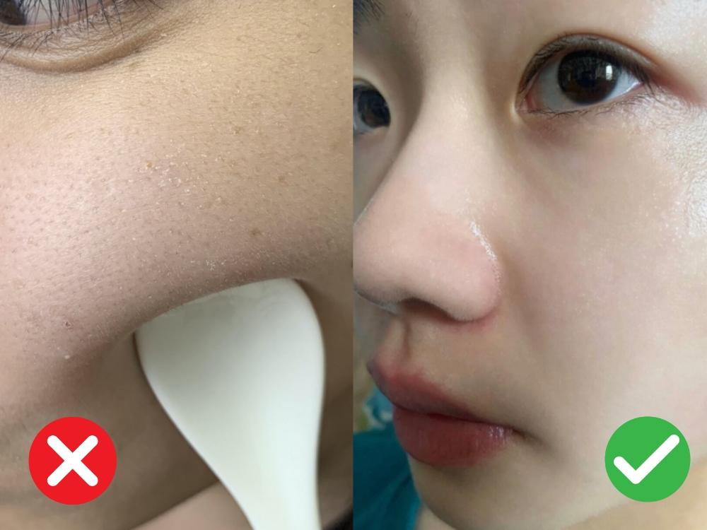 Dùng serum chứa Hyaluronic Acid để cấp ẩm thì quá chuẩn, nhưng bôi sai cách thì da sẽ khô như bị vắt kiệt nước - Ảnh 1.