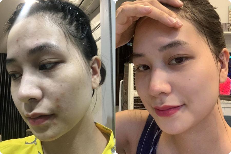 Dùng thử tuýp retinol A313 trong 1 tháng, cô nàng giảm hẳn mụn, lỗ chân lông nhỏ xíu: Ai chê chứ mình thấy rất nên dùng - Ảnh 8.