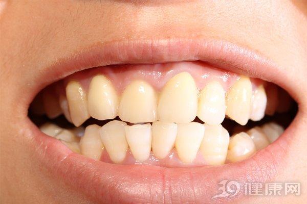 Đại học Harvard công bố kết quả nghiên cứu 20 năm về mối liên hệ giữa răng miệng và ung thư: Người có hàm răng xấu tăng nguy cơ mắc 2 bệnh ung thư - Ảnh 3.