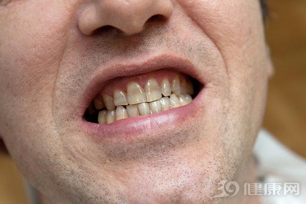Đại học Harvard công bố kết quả nghiên cứu 20 năm về mối liên hệ giữa răng miệng và ung thư: Người có hàm răng xấu tăng nguy cơ mắc 2 bệnh ung thư - Ảnh 1.