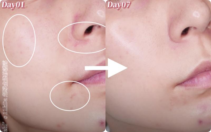 """Beauty blogger xứ Đài """"kiểm tra"""" khả năng trị nám, trẻ hóa của serum mới nhất nhà Kiehl's: Sau 7 ngày da giảm mụn thâm, da mượt mà thấy rõ - Ảnh 7."""