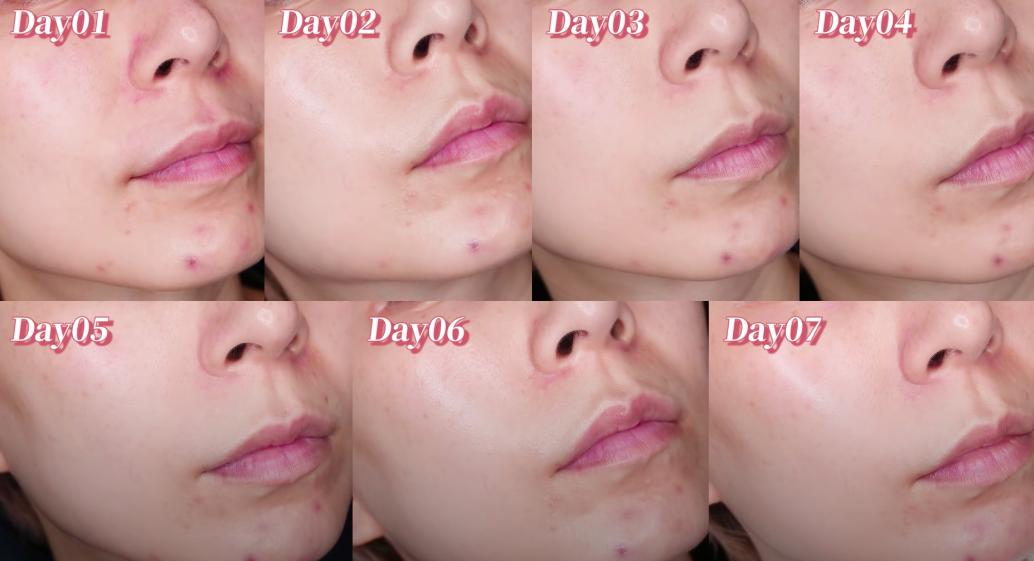 """Beauty blogger xứ Đài trực tiếp """"check"""" khả năng trị nám, trẻ hóa da của serum mới nhất nhà Kiehl's: Sau 7 ngày vết thâm to mờ dần, vết nhỏ lặn mất tăm - Ảnh 6."""