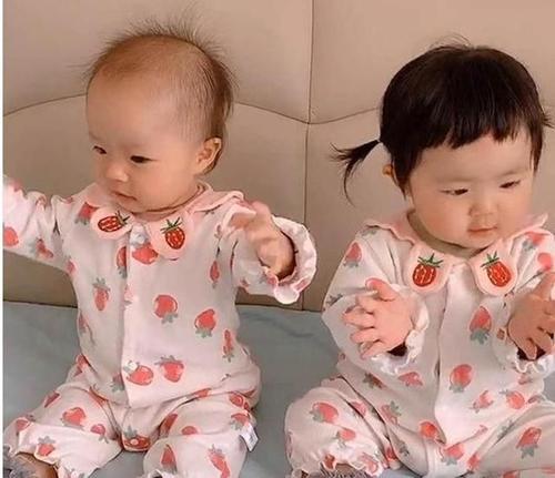 Hai bé gái sinh đôi nhưng có 1 đặc điểm khác nhau hoàn toàn, bé gái nhìn chị em song sinh của mình mà phải ghen tị ra mặt - Ảnh 2.