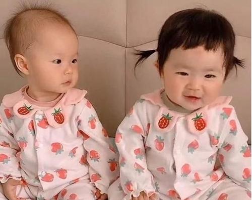 Hai bé gái sinh đôi nhưng có 1 đặc điểm khác nhau hoàn toàn, bé gái nhìn chị em song sinh của mình mà phải ghen tị ra mặt - Ảnh 1.