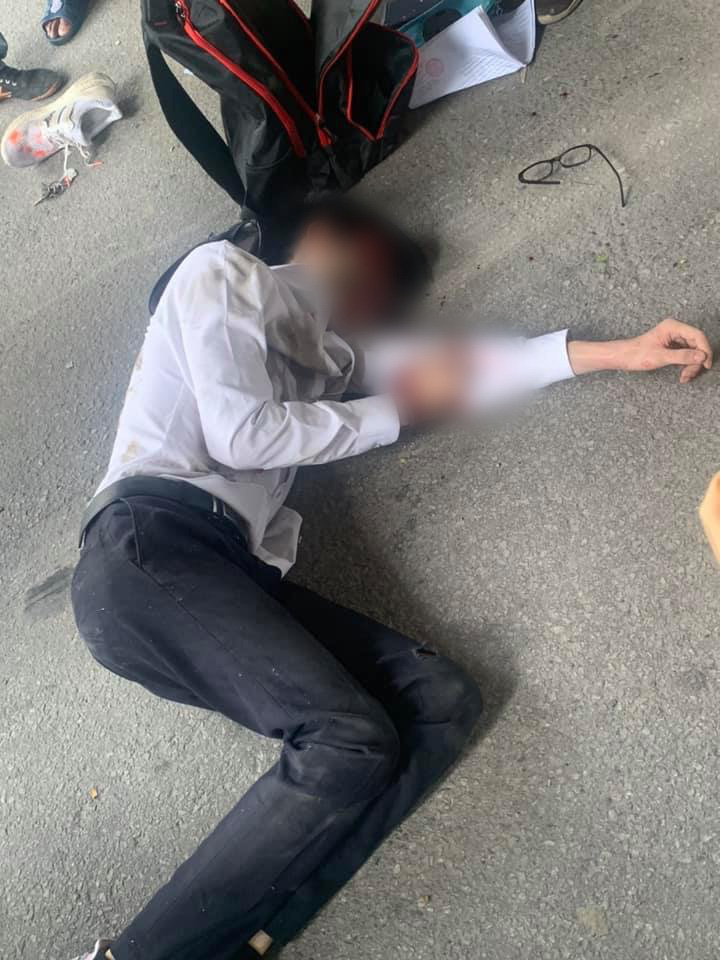 Hà Nội: Nam sinh gặp tai nạn, phải nhập viện khẩn cấp khi đang trên đường trở về nhà sau buổi thi THPT quốc gia - Ảnh 2.