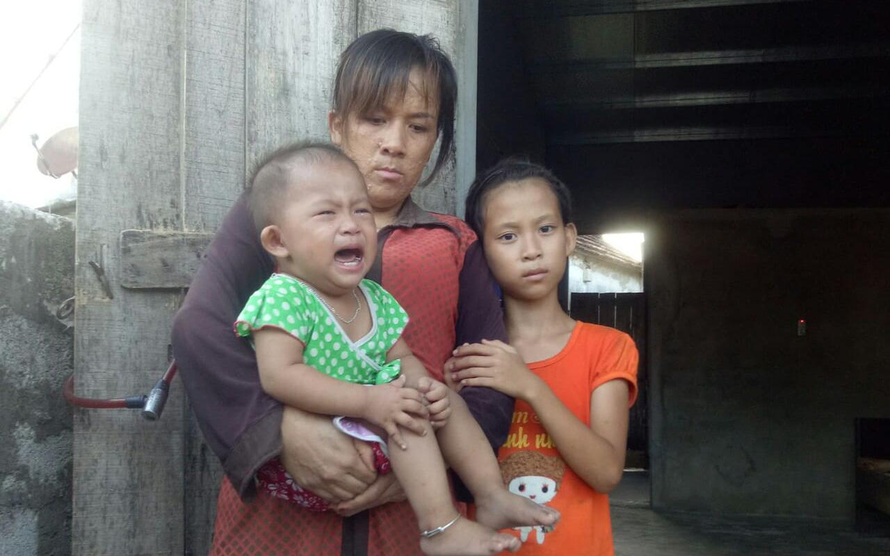 Mẹ mắc bệnh lạ, cơ thể nổi hàng nghìn khối u, bố bỏ đi biệt tích, hai đứa trẻ mịt mù tương lai