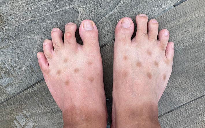 """Chia sẻ ảnh bàn chân lốm đốm """"kỳ dị"""" như mắc bệnh lạ, chàng trai tiết lộ lý do khiến bao người hốt hoảng soi lại chân mình"""