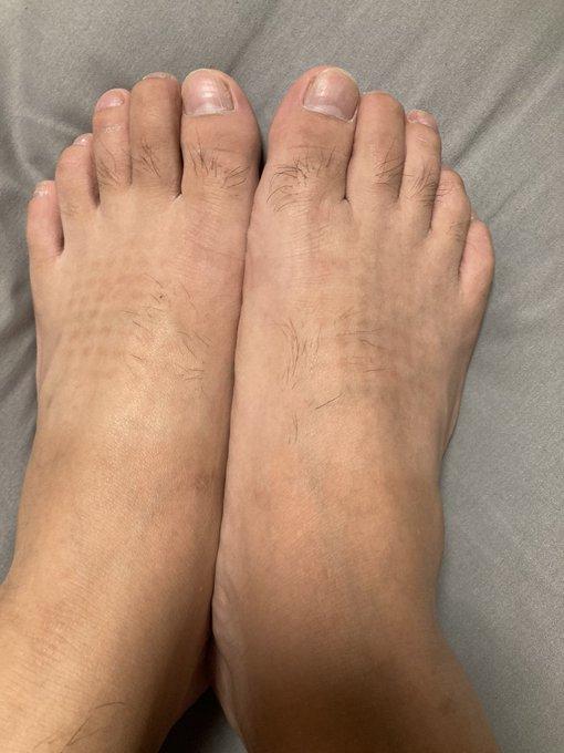 """Chia sẻ ảnh bàn chân lốm đốm """"kỳ dị"""" như mắc bệnh lạ, chàng trai tiết lộ lý do khiến bao người hốt hoảng soi lại chân mình - Ảnh 5."""