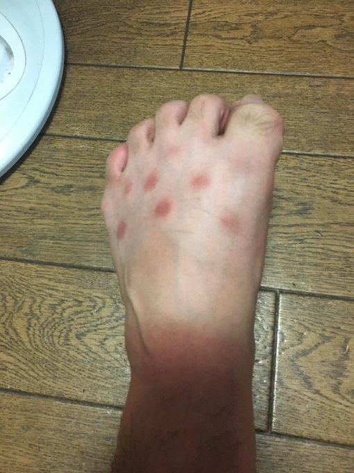 """Chia sẻ ảnh bàn chân lốm đốm """"kỳ dị"""" như mắc bệnh lạ, chàng trai tiết lộ lý do khiến bao người hốt hoảng soi lại chân mình - Ảnh 4."""