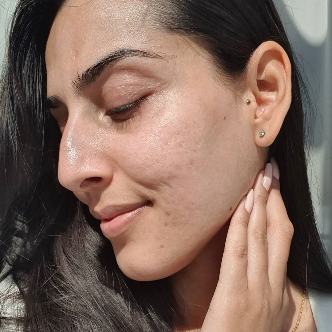 Một loại Vitamin siêu dưỡng ẩm dành cho da khô, khả năng chống già ngang ngửa Vit C mà giá cực mềm được hội chị em dùng ầm ầm trong mùa Thu - Ảnh 4.