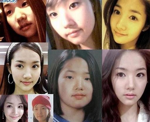 Nữ hoàng dao kéo Park Min Young: Báu vật hiếm hoi đánh bay định kiến vẻ đẹp nhân tạo châu Á, đổi đời và có được trái tim 2 nam thần Kbiz - Ảnh 4.