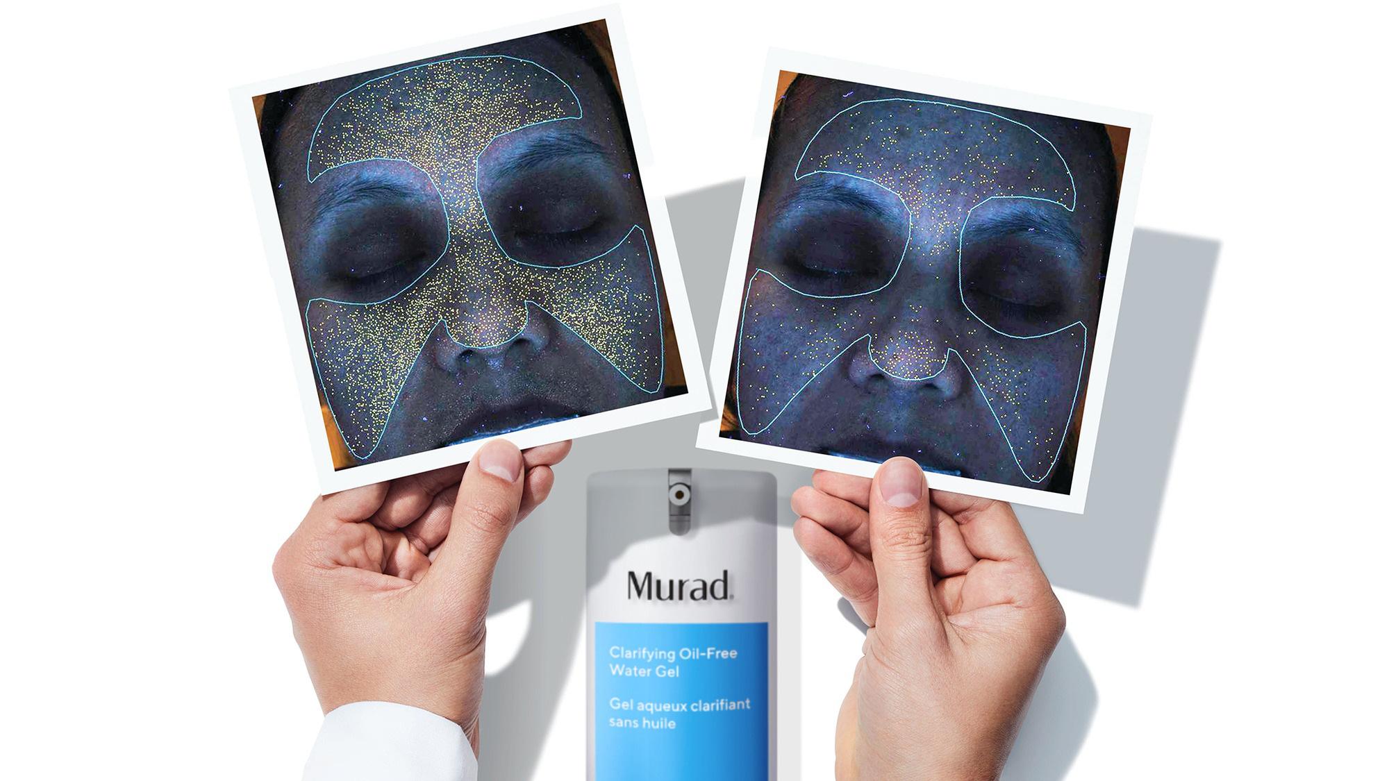 Review gel ngừa mụn tối ưu cho da dầu của Murad