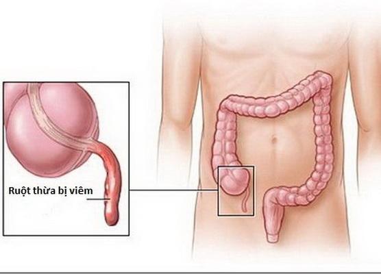 Trẻ kêu đau bụng - chớ xem thường - Ảnh 2.