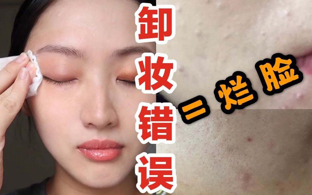 """Beauty blogger người Nhật cảnh báo: Chị em đang """"hủy hoại"""" chính làn da của mình ngay từ bước tẩy trang"""
