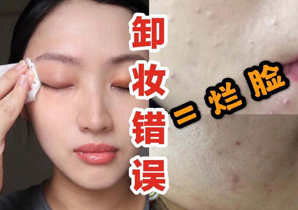 """Beauty blogger người Nhật: Chị em đang """"huỷ hoại"""" làn da của mình ngay từ bước tẩy trang - Ảnh 3."""