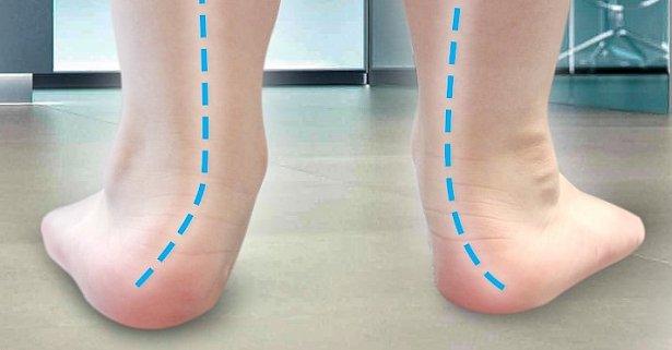 Hầu hết trẻ dưới 6 tuổi đều có hiện tượng bàn chân như thế này nhưng không ít bố mẹ lại vội vã đi điều trị - Ảnh 2.