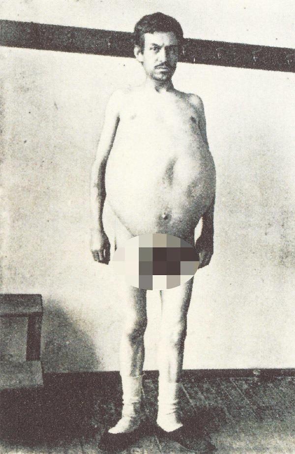 """Chuyện kỳ lạ về người đàn ông bị táo bón bẩm sinh, chết trong nhà vệ sinh khi cố đi đại tiện, cận cảnh ruột già được trưng bày trong bảo tàng Mỹ gây """"sởn da gà"""" - Ảnh 2."""
