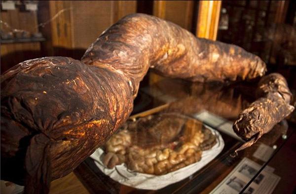 """Chuyện kỳ lạ về người đàn ông bị táo bón bẩm sinh, chết trong nhà vệ sinh khi cố đi đại tiện, cận cảnh ruột già được trưng bày trong bảo tàng Mỹ gây """"sởn da gà"""" - Ảnh 4."""