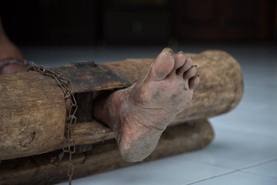 """Có một """"địa ngục"""" ở giữa thiên đường Bali trong mắt khách du lịch: Nơi bệnh nhân tâm thân đang bị xiềng xích bởi tục lệ Pasung man rợ - Ảnh 3."""