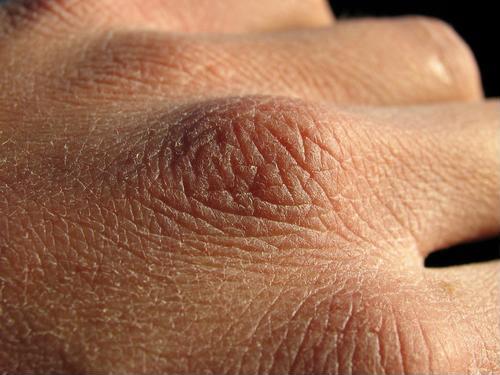 Chuyên gia da liễu tiết lộ 3 bệnh về da thường gặp vào mùa đông, muốn phòng tránh phải làm đủ 10 điều quan trọng sau! - Ảnh 1.