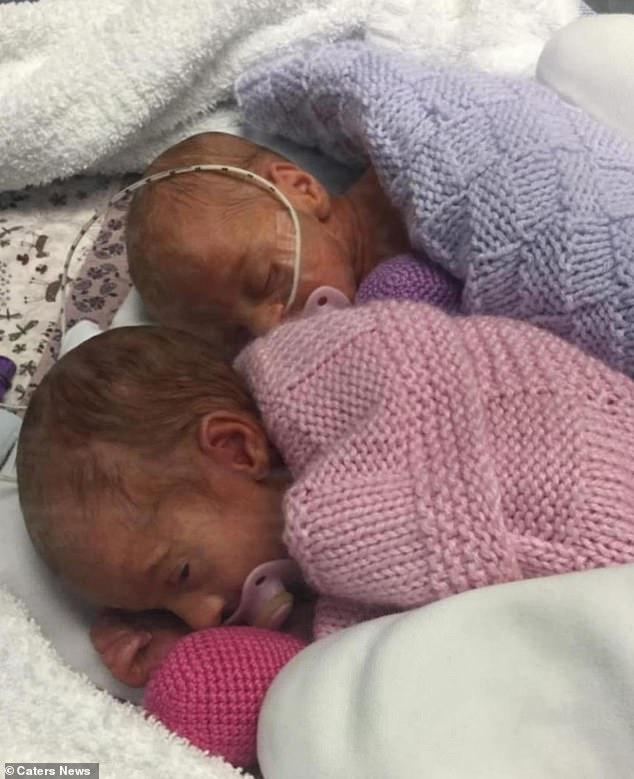 Tan chảy với khoảnh khắc kỳ diệu của cặp đôi sinh non ôm nhau khi vừa chào đời - Ảnh 5.