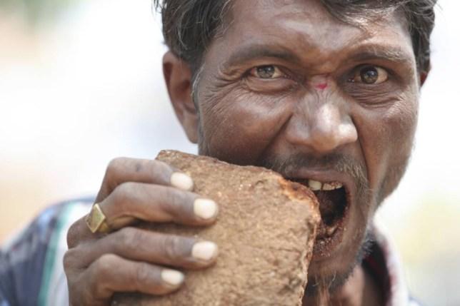 Lý giải chứng bệnh khiến nam thanh niên 27 tuổi ở Bình Dương nuốt 1kg lưỡi dao, đinh, móc đồ - Ảnh 2.