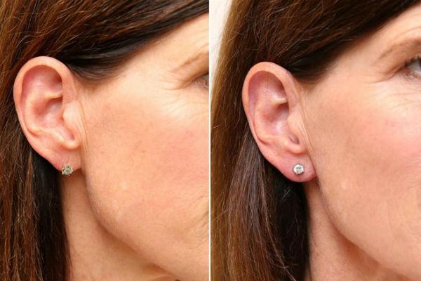 Tiêm filler để sở hữu tai đẹp như tai Phật: Chuyên gia tiết lộ quy trình từ A đến Z - Ảnh 4.