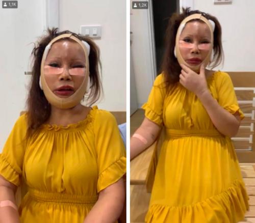 Sau nửa năm dao kéo, cô dâu 62 tuổi ở Cao Bằng vẫn sở hữu gương mặt cứng đơ, méo lệch - Ảnh 2.