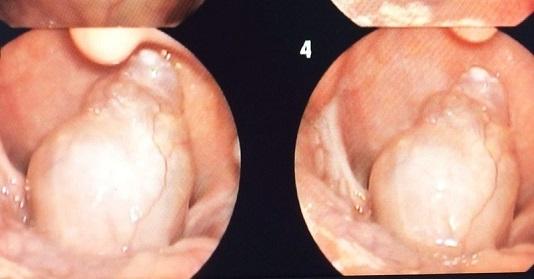 Hiếm gặp bệnh nhi 7 tuổi mắc khối u lớn vùng hạ họng - Ảnh 1.