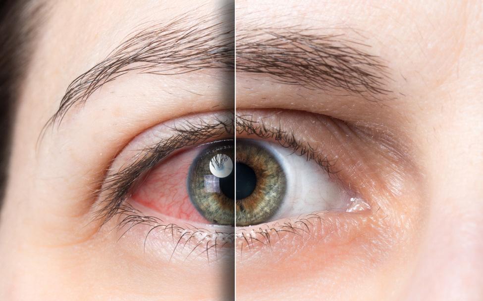 10 phương pháp bảo vệ mắt mà nhân viên văn phòng cần biết