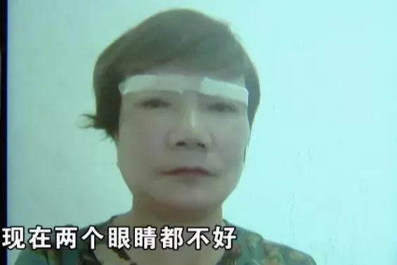 """Lén làm phẫu thuật thẩm mỹ, vợ 59 tuổi bị chồng cấm bước vào nhà vì lý do """"trời ơi đất hỡi"""" nhưng điều gây tranh cãi là chi phí dao kéo - Ảnh 2."""