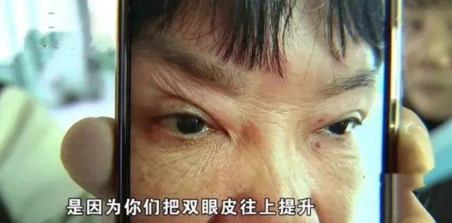 """Lén làm phẫu thuật thẩm mỹ, vợ 59 tuổi bị chồng cấm bước vào nhà vì lý do """"trời ơi đất hỡi"""" nhưng điều gây tranh cãi là chi phí dao kéo - Ảnh 3."""