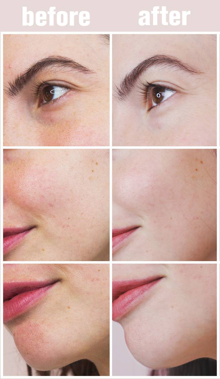 Học ngay liệu trình chăm da của đồng nghiệp Chăm sóc da - Ảnh 12.