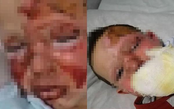 Cay cú trong cuộc chiến ly hôn với vợ, gã đàn ông ác quỷ trút giận lên đứa con trai 4 tuổi để lại cảnh tượng đau thắt ruột gan