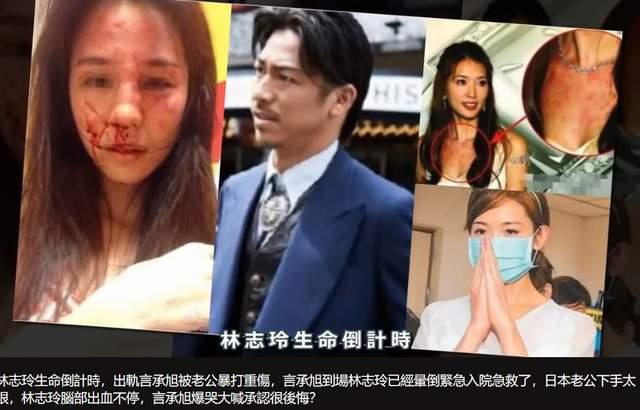 Nhiều người hoang mang khi nghe tin Lâm Chí Linh bị chồng bạo hành.