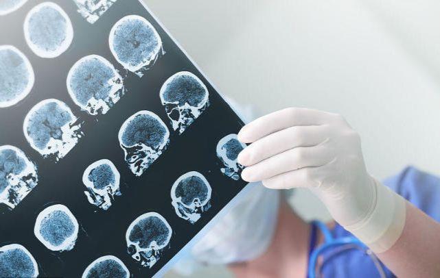 Cặp vợ chồng 57 tuổi lần lượt qua đời vì nhồi máu não, bác sĩ cho biết là do hàng ngày ăn món này - Ảnh 1.
