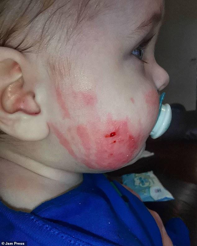 Cậu bé liên tục la hét đau đớn bởi làn da sưng tấy, phồng rộp chảy máu, thậm chí không thể làm bất cứ thứ gì vì lý do này - Ảnh 6.
