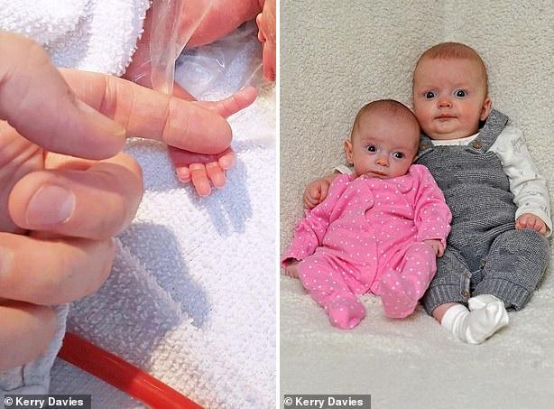 Một bà mẹ mang thai song sinh nhưng lại là trường hợp hiếm gặp đến mức cả thế giới mới chỉ có 12 ca - Ảnh 2.