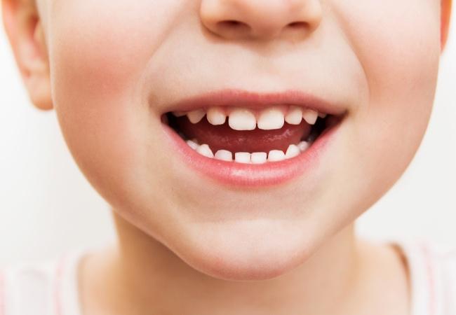 Giải pháp phòng tránh sâu răng đơn giản và an toàn cha mẹ có thể làm cho con ngay từ khi mọc chiếc răng sữa đầu tiên - Ảnh 1.
