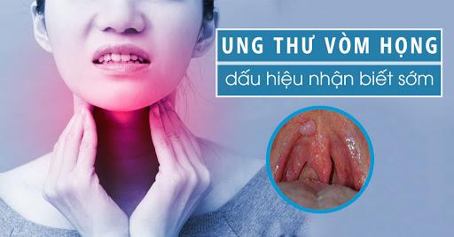 Thiếu niên 15 tuổi bị sưng tấy ở cổ, đến bệnh viện được chẩn đoán ung thư vòm họng, đừng bỏ qua 6 dấu hiệu bệnh ở giai đoạn đầu - Ảnh 2.