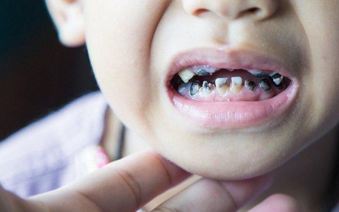 Trẻ bị sâu răng nguy hiểm hơn cha mẹ nghĩ, đây là 5 mối nguy hại khi răng trẻ bị hiện tượng này từ sớm