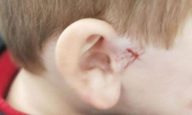 Thêm vụ cậu bé bị thương nặng ở tai vì chiếc móc áo bằng kim loại khiến các bà mẹ hoảng sợ - Ảnh 1.