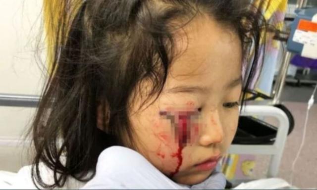 Thêm vụ cậu bé bị thương nặng ở tai vì chiếc móc áo bằng kim loại khiến các bà mẹ hoảng sợ - Ảnh 2.