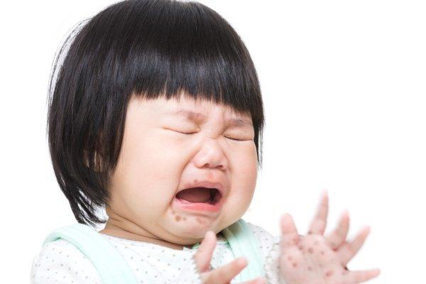 Bệnh tay chân miệng ở trẻ: Những biến chứng nghiêm trọng, cách nhận biết, điều trị bệnh cha mẹ cần nắm được để phòng bệnh cho con - Ảnh 8.