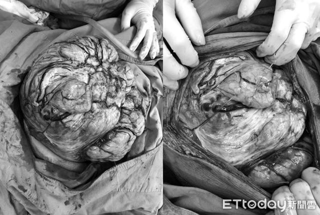 Người phụ nữ chướng bụng, ăn không ngon, đến bệnh viện khám phát hiện khối u 5kg - Ảnh 2.
